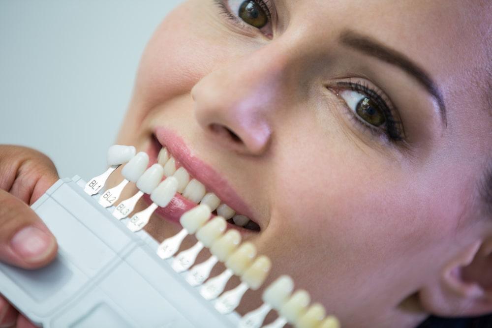 Tono de dientes